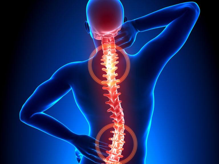 3 semplici esercizi contro il mal di schiena - CSM Minusio..