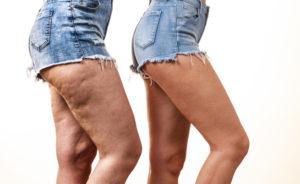 Come Eliminare La Cellulite Csm Minusio Blog